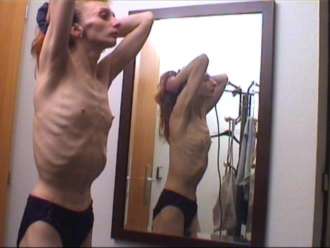 анерексички голые фото