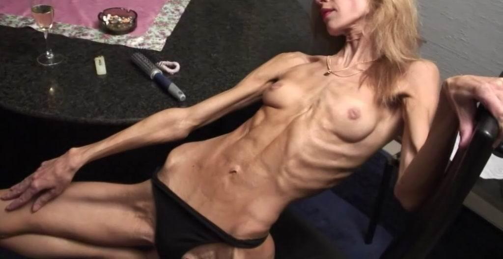 анорексия проститутки