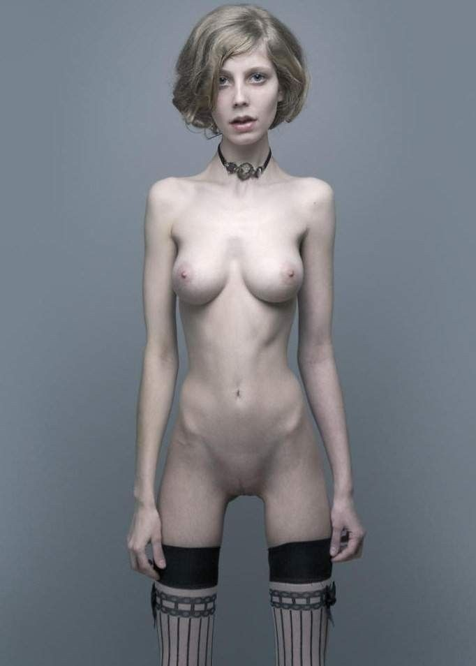 hot nude anorexic girls