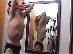 anorexic_nude01.jpg