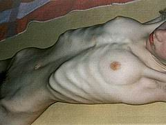 anorexic_nude05.jpg