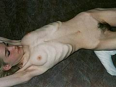 anorexic_nude06.jpg