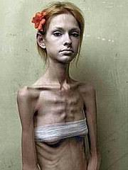 anorexic_porn110.jpg