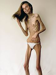 anorexic_porn112.jpg