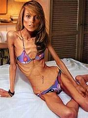 anorexic_porn116.jpg