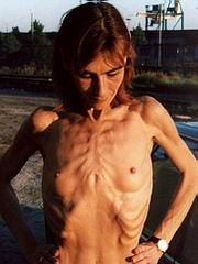 anorexic_porn130.jpg