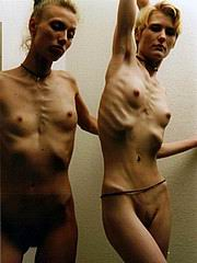 anorexic_porn132.jpg