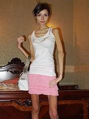 anorexic_porn17.jpg