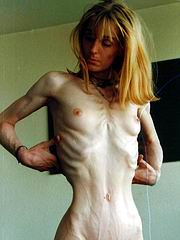 anorexic_porn39.jpg