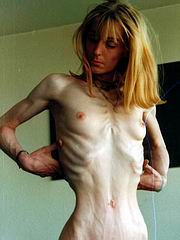 anorexic_porn45.jpg