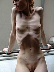 anorexic_porn59.jpg