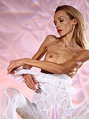 beautiful-anorexic-inna12.jpg