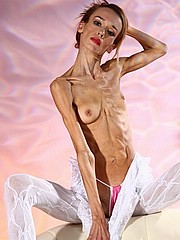 beautiful-anorexic-inna15.jpg