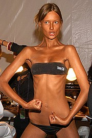 beauty-of-anorexia12.jpg