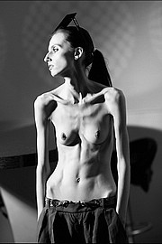 thin-bony-girls13.jpg