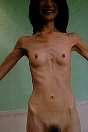anorexic-nudes-for-skinny-fans01.jpg