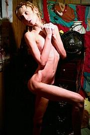 anorexic-nudes-for-skinny-fans03.jpg