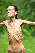 anorexic_model_poses_nude_for_the_camera01.jpg