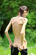 anorexic_model_poses_nude_for_the_camera04.jpg