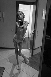 bone-skinny-girls15.jpg