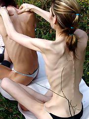 Anorexic Girls from skinnyfans.com