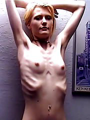 Unbelievable anorexic girl Anna from skinnyfans.com