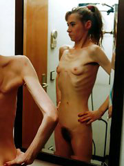 Anorexic girl posing in front of the mirror